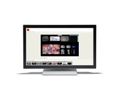 Touch displays and User Interfaces