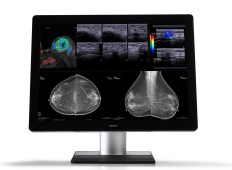 Mammography displays